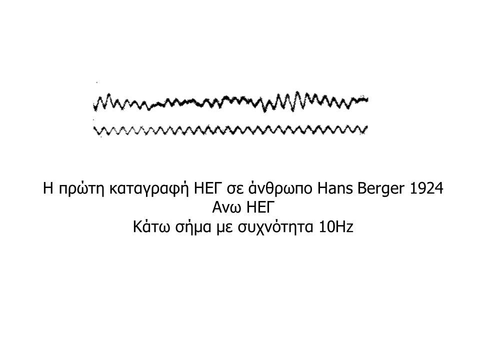 Η πρώτη καταγραφή ΗΕΓ σε άνθρωπο Hans Berger 1924 Ανω ΗΕΓ Κάτω σήμα με συχνότητα 10Hz