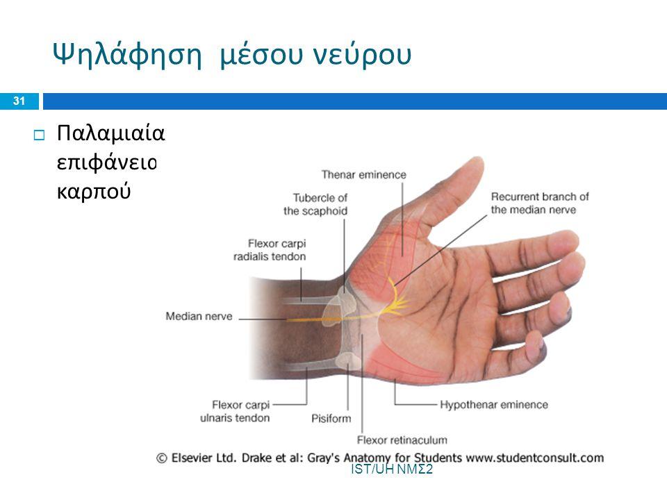 Ψηλάφηση μέσου νεύρου  Παλαμιαία επιφάνεια καρπού IST/UH ΝΜΣ2 31