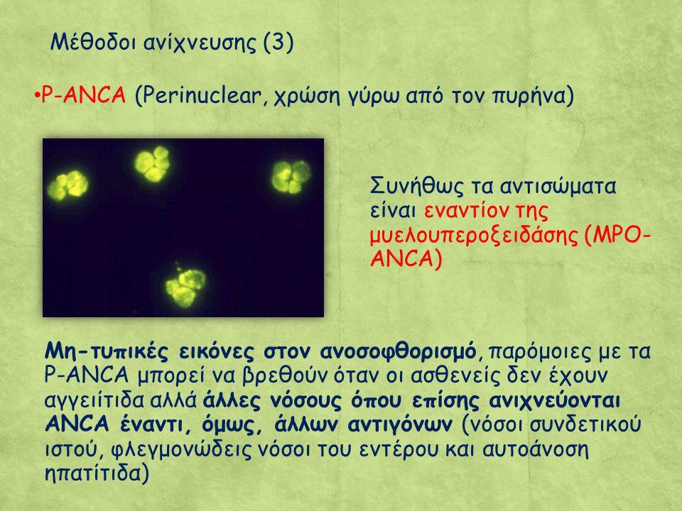 P-ANCA (Perinuclear, χρώση γύρω από τον πυρήνα) Συνήθως τα αντισώματα είναι εναντίον της μυελουπεροξειδάσης (MPO- ANCA) Μη-τυπικές εικόνες στον ανοσοφθορισμό, παρόμοιες με τα Ρ-ANCA μπορεί να βρεθούν όταν οι ασθενείς δεν έχουν αγγειίτιδα αλλά άλλες νόσους όπου επίσης ανιχνεύονται ANCA έναντι, όμως, άλλων αντιγόνων (νόσοι συνδετικού ιστού, φλεγμονώδεις νόσοι του εντέρου και αυτοάνοση ηπατίτιδα) Μέθοδοι ανίχνευσης (3)