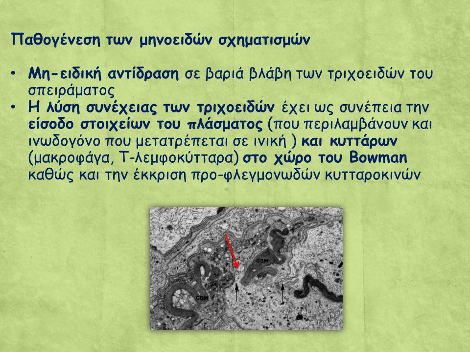Παθογένεση των μηνοειδών σχηματισμών Μη-ειδική αντίδραση σε βαριά βλάβη των τριχοειδών του σπειράματος Η λύση συνέχειας των τριχοειδών έχει ως συνέπεια την είσοδο στοιχείων του πλάσματος (που περιλαμβάνουν και ινωδογόνο που μετατρέπεται σε ινική ) και κυττάρων (μακροφάγα, Τ-λεμφοκύτταρα) στο χώρο του Bowman καθώς και την έκκριση προ-φλεγμονωδών κυτταροκινών