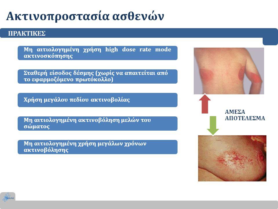 Ακτινοπροστασία ασθενών ΠΡΑΚΤΙΚΕΣ Μη αιτιολογημένη χρήση high dose rate mode ακτινοσκόπησης Σταθερή είσοδος δέσμης (χωρίς να απαιτείται από το εφαρμοζ