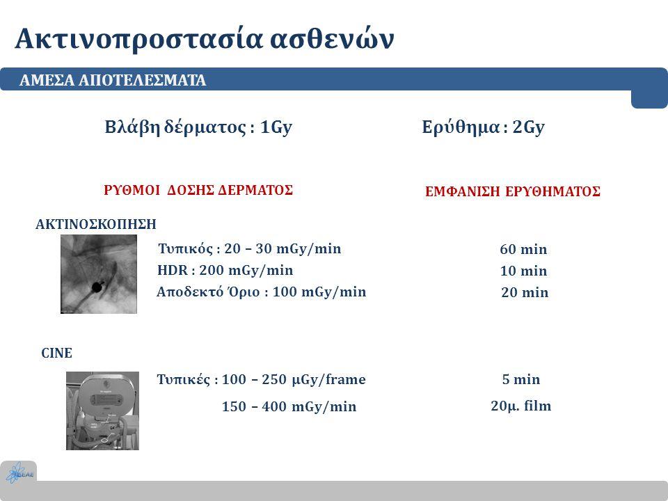 Ακτινοπροστασία ασθενών ΑΜΕΣΑ ΑΠΟΤΕΛΕΣΜΑΤΑ ΑΚΤΙΝΟΣΚΟΠΗΣΗ Τυπικός : 20 – 30 mGy/min HDR : 200 mGy/min Αποδεκτό Όριο : 100 mGy/min Βλάβη δέρματος : 1Gy