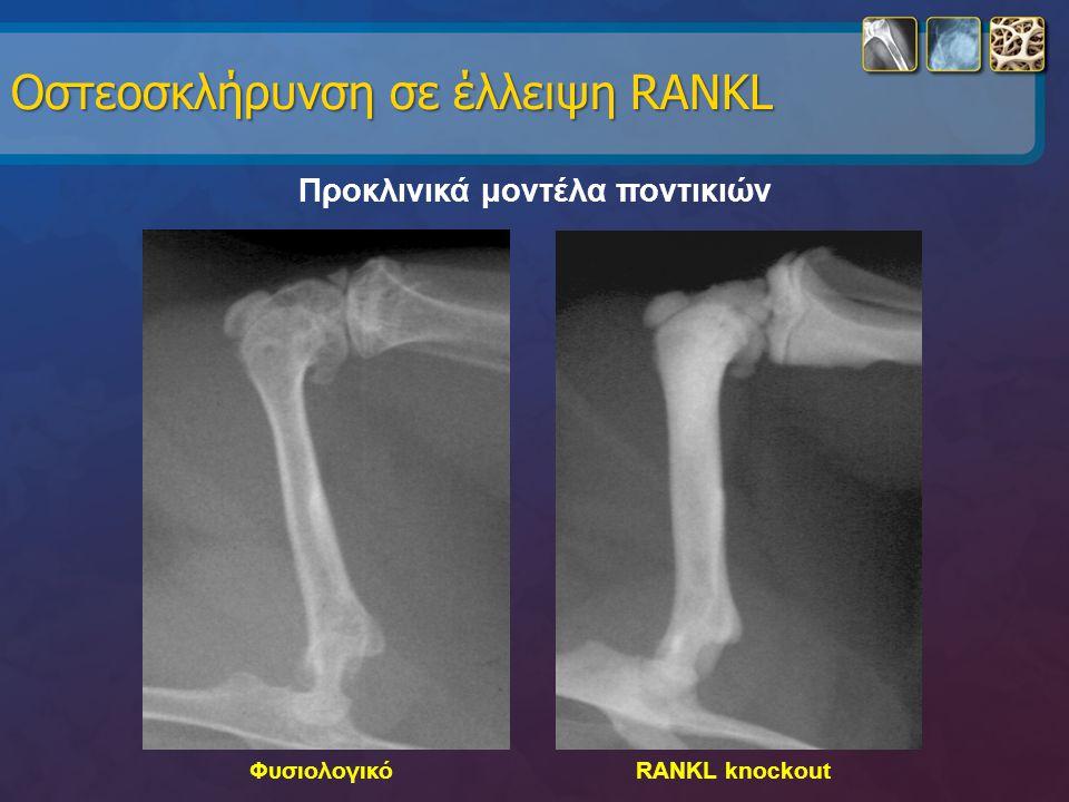 Οστεοσκλήρυνση σε έλλειψη RANKL Προκλινικά μοντέλα ποντικιών ΦυσιολογικόRANKL knockout