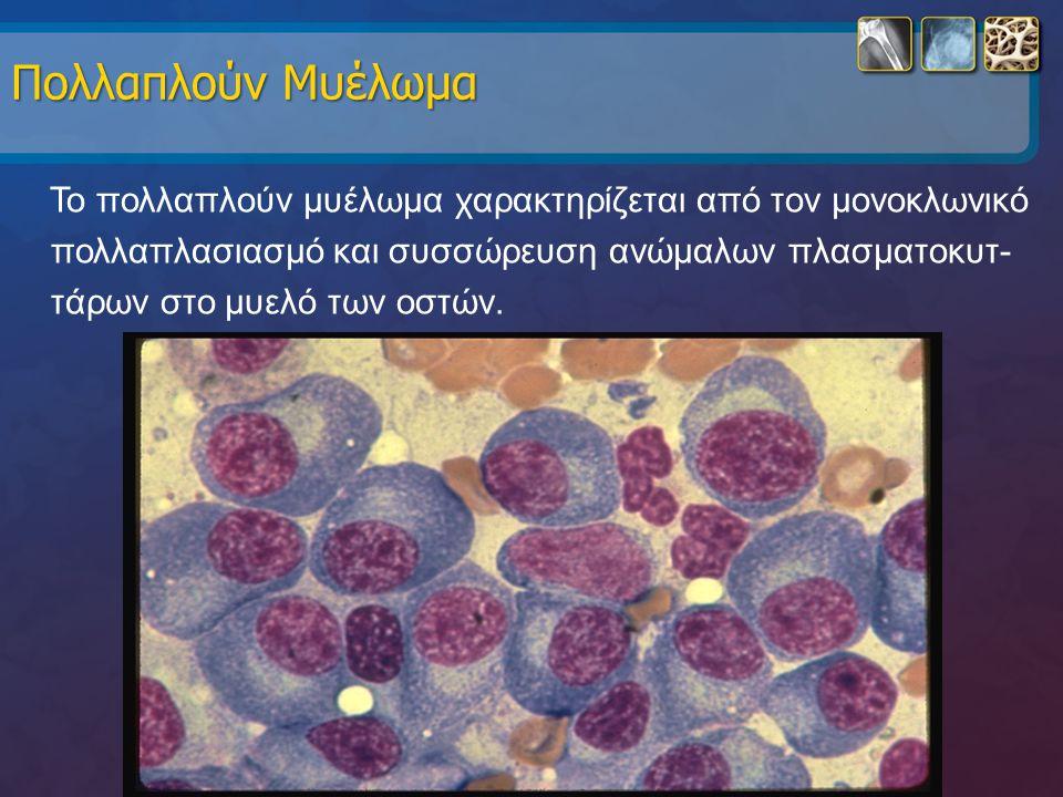 Πολλαπλούν Μυέλωμα Το πολλαπλούν μυέλωμα χαρακτηρίζεται από τον μονοκλωνικό πολλαπλασιασμό και συσσώρευση ανώμαλων πλασματοκυτ- τάρων στο μυελό των οσ