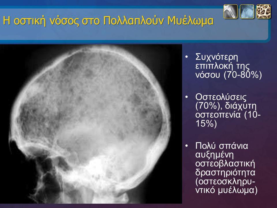 Η οστική νόσος στο Πολλαπλούν Μυέλωμα Η οστική νόσος στο Πολλαπλούν Μυέλωμα Συχνότερη επιπλοκή της νόσου (70-80%) Οστεολύσεις (70%), διάχυτη οστεοπενί