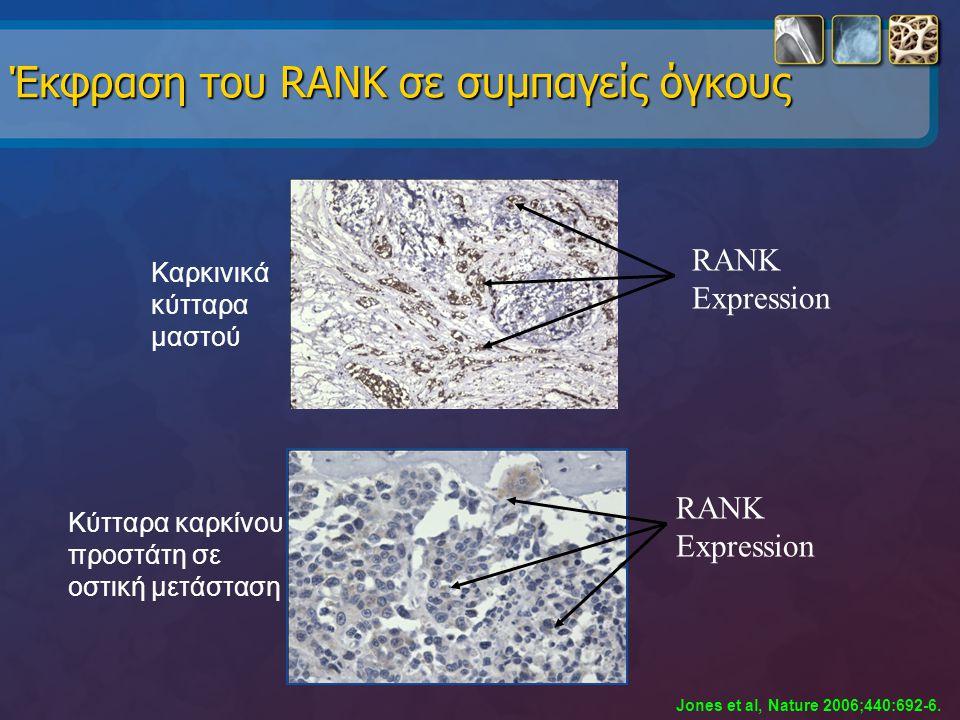 RANK Expression Καρκινικά κύτταρα μαστού Κύτταρα καρκίνου προστάτη σε οστική μετάσταση Έκφραση του RANK σε συμπαγείς όγκους RANK Expression Jones et a