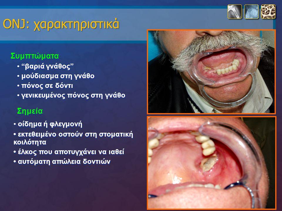 "ONJ: χαρακτηριστικά Συμπτώματα ""βαριά γνάθος"" μούδιασμα στη γνάθο πόνος σε δόντι γενικευμένος πόνος στη γνάθο Σημεία οίδημα ή φλεγμονή εκτεθειμένο οστ"