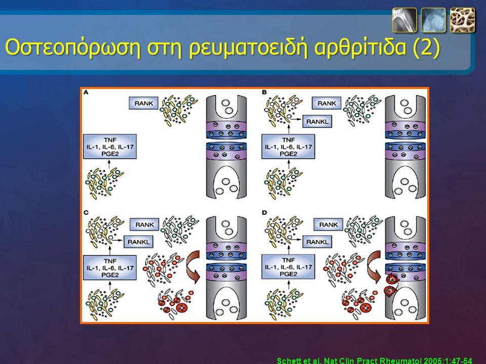 Oστεοπόρωση στη ρευματοειδή αρθρίτιδα (2) Schett et al, Nat Clin Pract Rheumatol 2005;1:47-54