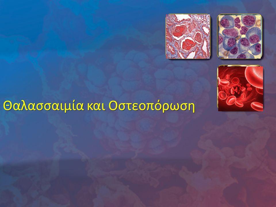 Θαλασσαιμία και Οστεοπόρωση