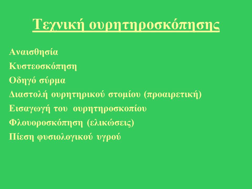 Τεχνική ουρητηροσκόπησης Αναισθησία Κυστεοσκόπηση Οδηγό σύρμα Διαστολή ουρητηρικού στομίου (προαιρετική) Εισαγωγή του ουρητηροσκοπίου Φλουοροσκόπηση (