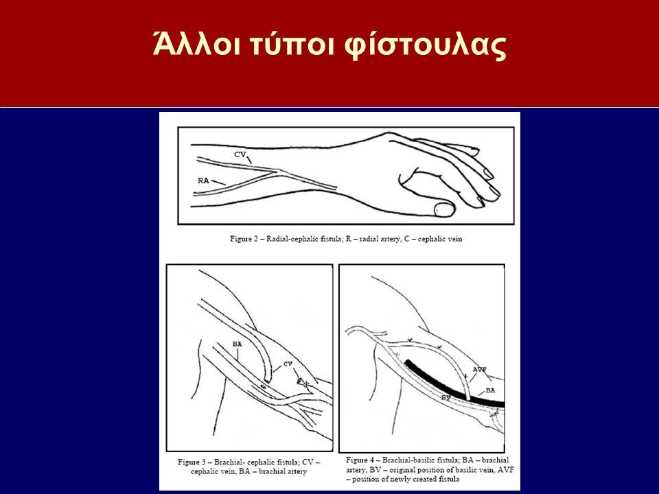 Συμπεράσματα-ΙΙ Η κατάλληλη προετοιμασία της θέσης παρακέντησης ελαττώνει τη συχνότητα λοιμώξεων Πάντα παρακεντάτε τη φλεβική βελόνα με την κατεύθυνση της ροής του αίματος και την αρτηριακή βελόνα αντίθετα προς την κατεύθυνση ροής του αίματος Η αρτηρία δεν παρακεντείται ποτέ Υπάρχουν δύο καθιερωμένοι τρόποι παρακέντησης της φίστουλα: α) της εναλλαγής των σημείων (ανεμόσκαλας) και των σταθερών σημείων (κουμπότρυπας) και μία αυθαίρετη (παρακέντηση γύρω από το ίδιο σημείο)