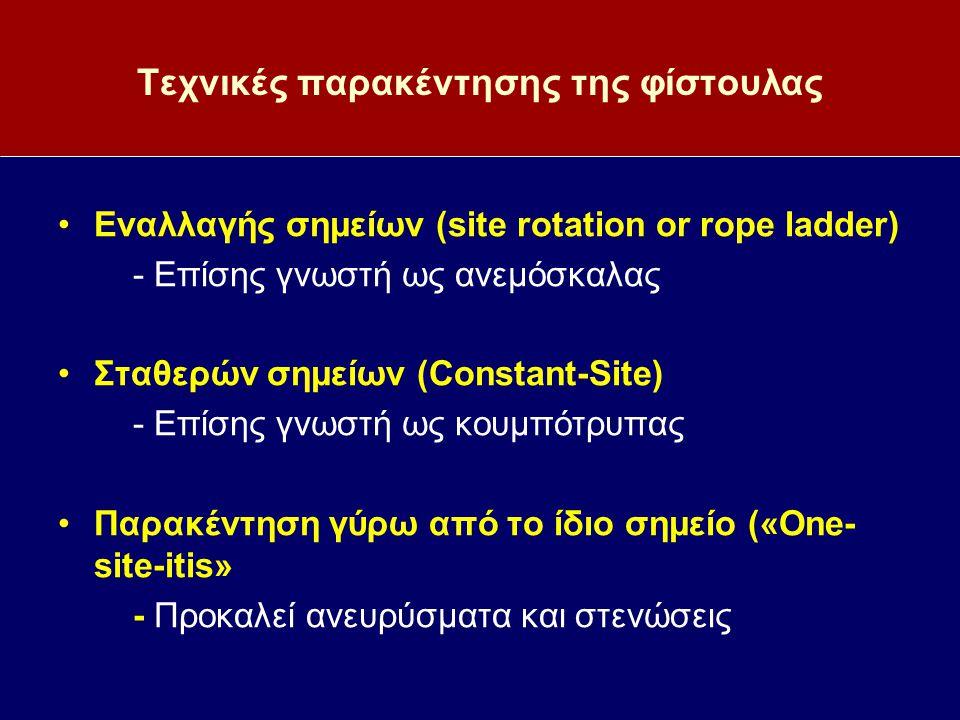 Τεχνικές παρακέντησης της φίστουλας Εναλλαγής σημείων (site rotation or rope ladder) - Επίσης γνωστή ως ανεμόσκαλας Σταθερών σημείων (Constant-Site) -