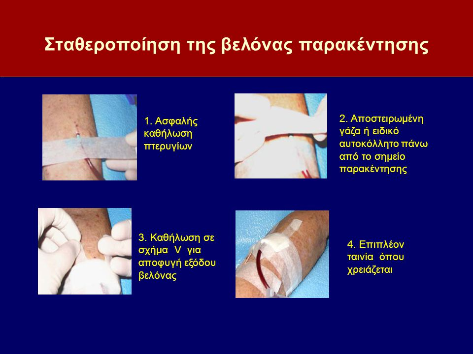 Σταθεροποίηση της βελόνας παρακέντησης 1. Ασφαλής καθήλωση πτερυγίων 3. Καθήλωση σε σχήμα V για αποφυγή εξόδου βελόνας 2. Αποστειρωμένη γάζα ή ειδικό