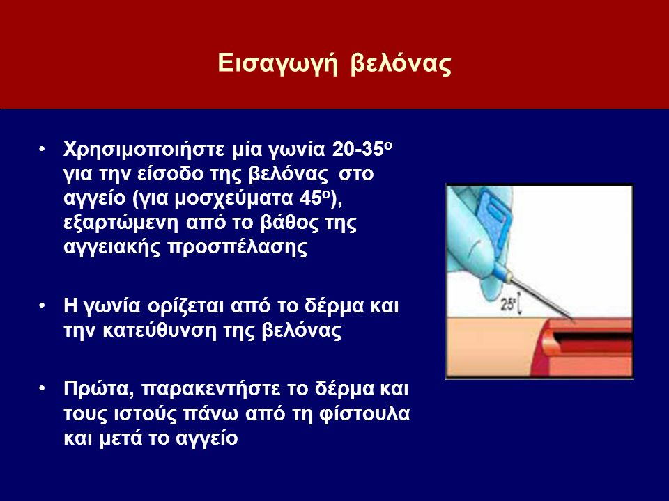 Εισαγωγή βελόνας Χρησιμοποιήστε μία γωνία 20-35 ο για την είσοδο της βελόνας στο αγγείο (για μοσχεύματα 45 ο ), εξαρτώμενη από το βάθος της αγγειακής