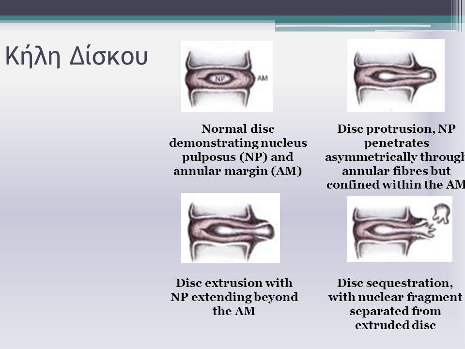 Κήλη Δίσκου Normal disc demonstrating nucleus pulposus (NP) and annular margin (AM) Disc protrusion, NP penetrates asymmetrically through annular fibr