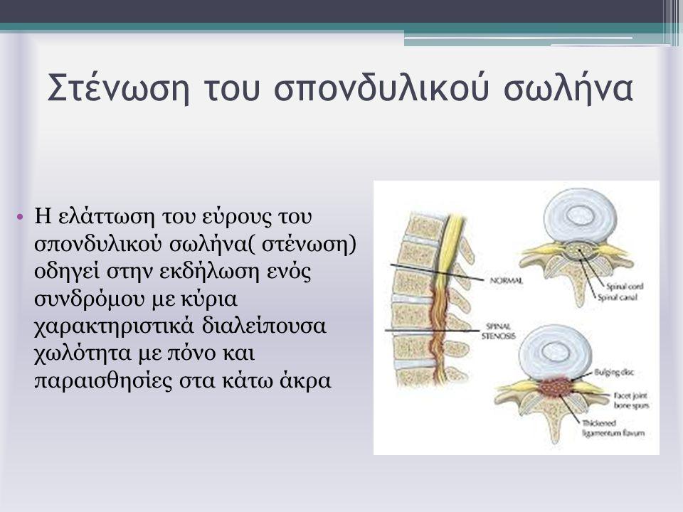 Στένωση του σπονδυλικού σωλήνα Η ελάττωση του εύρους του σπονδυλικού σωλήνα( στένωση) οδηγεί στην εκδήλωση ενός συνδρόμου με κύρια χαρακτηριστικά διαλ