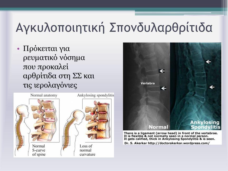 Αγκυλοποιητική Σπονδυλαρθρίτιδα Πρόκειται για ρευματικό νόσημα που προκαλεί αρθρίτιδα στη ΣΣ και τις ιερολαγόνιες