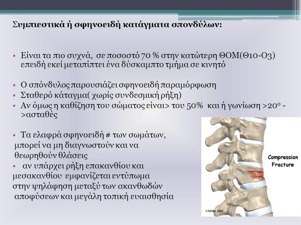Συμπιεστικά ή σφηνοειδή κατάγματα σπονδύλων: Είναι τα πιο συχνά, σε ποσοστό 70 % στην κατώτερη ΘΟΜ(Θ10-Ο3) επειδή εκεί μεταπίπτει ένα δύσκαμπτο τμήμα