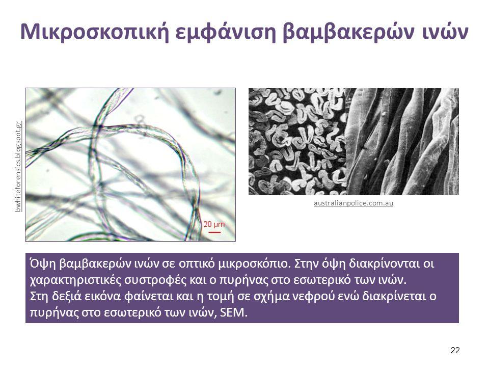 Μικροσκοπική εμφάνιση βαμβακερών ινών Όψη βαμβακερών ινών σε οπτικό μικροσκόπιο. Στην όψη διακρίνονται οι χαρακτηριστικές συστροφές και ο πυρήνας στο
