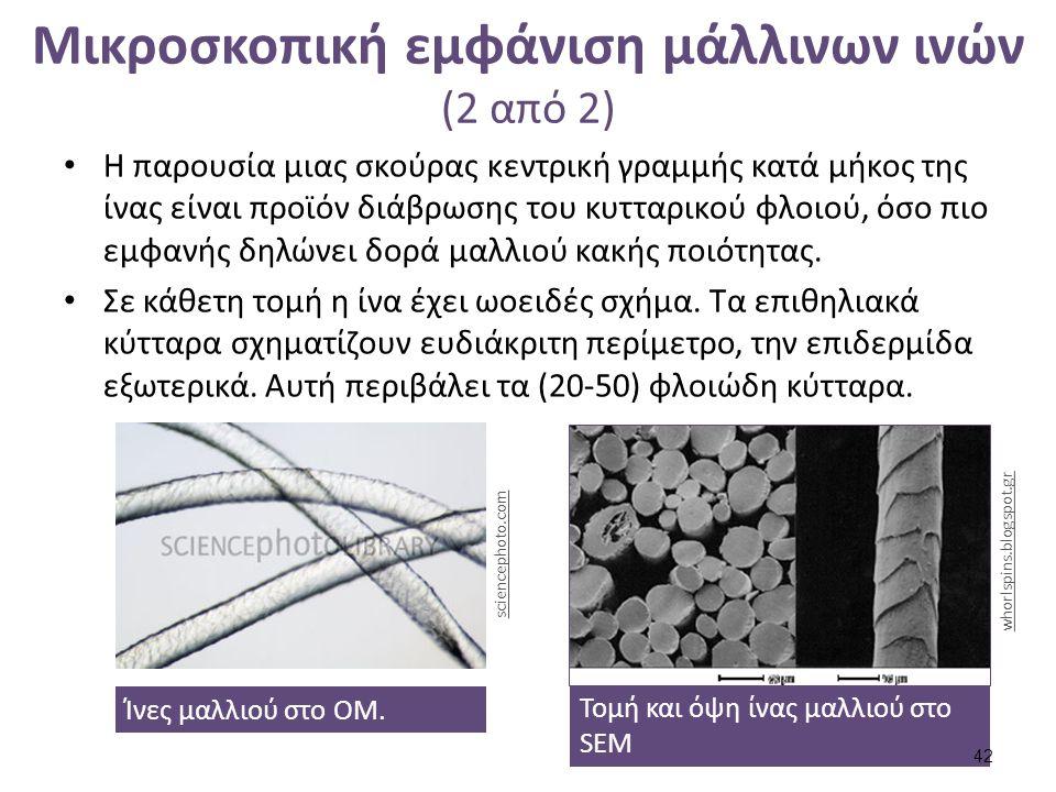 Μικροσκοπική εμφάνιση μάλλινων ινών (2 από 2) Η παρουσία μιας σκούρας κεντρική γραμμής κατά μήκος της ίνας είναι προϊόν διάβρωσης του κυτταρικού φλοιο