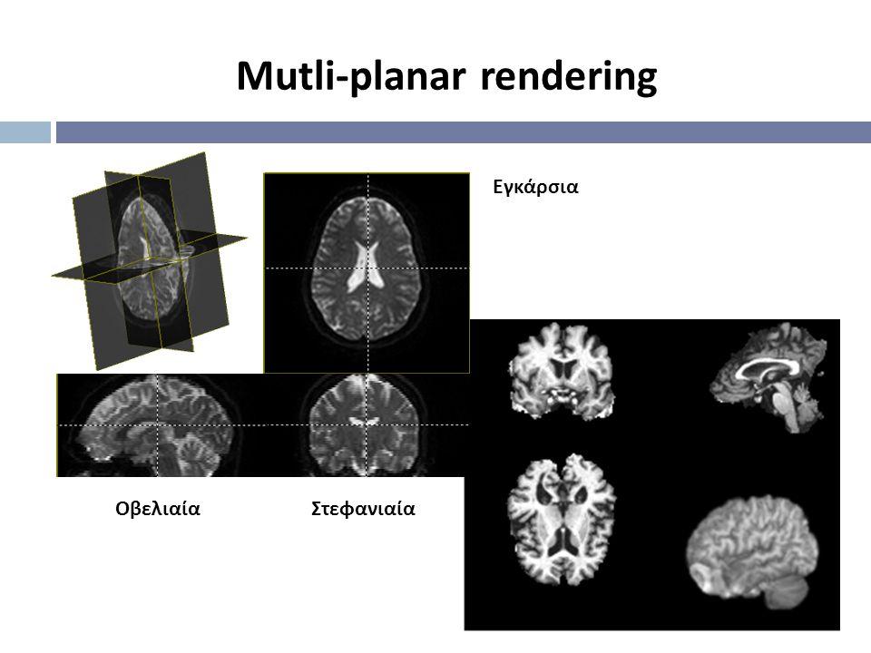 Mutli-planar rendering Εγκάρσια ΣτεφανιαίαΟβελιαία