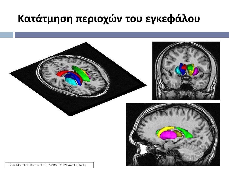 Κατάτμηση περιοχών του εγκεφάλου Linda Marrakchi-Kacem et al., ESMRMB 2009, Antalia, Turky