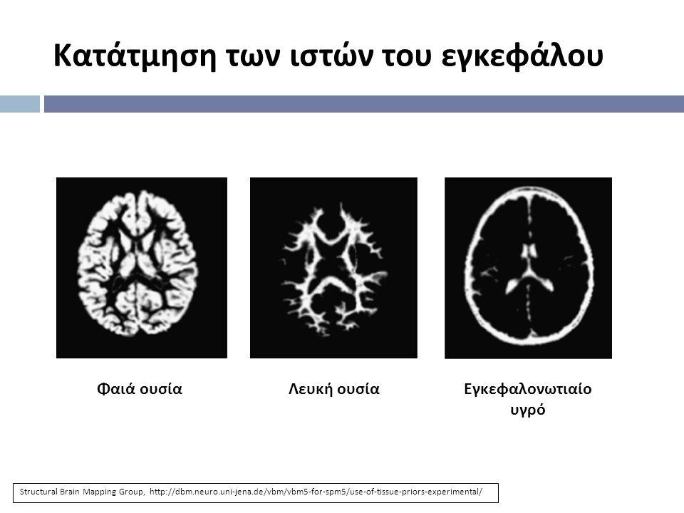 Κατάτμηση των ιστών του εγκεφάλου Φαιά ουσίαΛευκή ουσίαΕγκεφαλονωτιαίο υγρό Structural Brain Mapping Group, http://dbm.neuro.uni-jena.de/vbm/vbm5-for-spm5/use-of-tissue-priors-experimental/