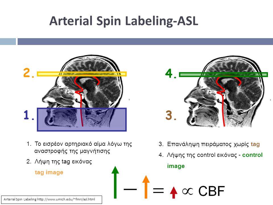 Arterial Spin Labeling-ASL 1.Το εισρέον αρτηριακό αίμα λόγω της αναστροφής της μαγνήτισης 2.