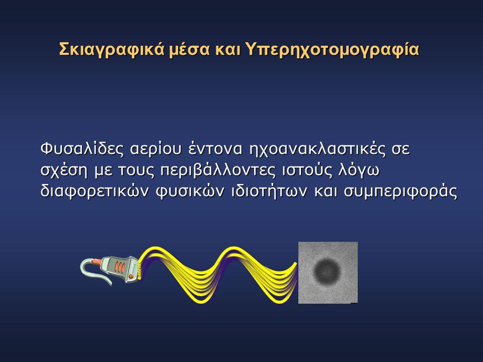 Σκιαγραφικά μέσα και Υπερηχοτομογραφία Φυσαλίδες αερίου έντονα ηχοανακλαστικές σε σχέση με τους περιβάλλοντες ιστούς λόγω διαφορετικών φυσικών ιδιοτήτ