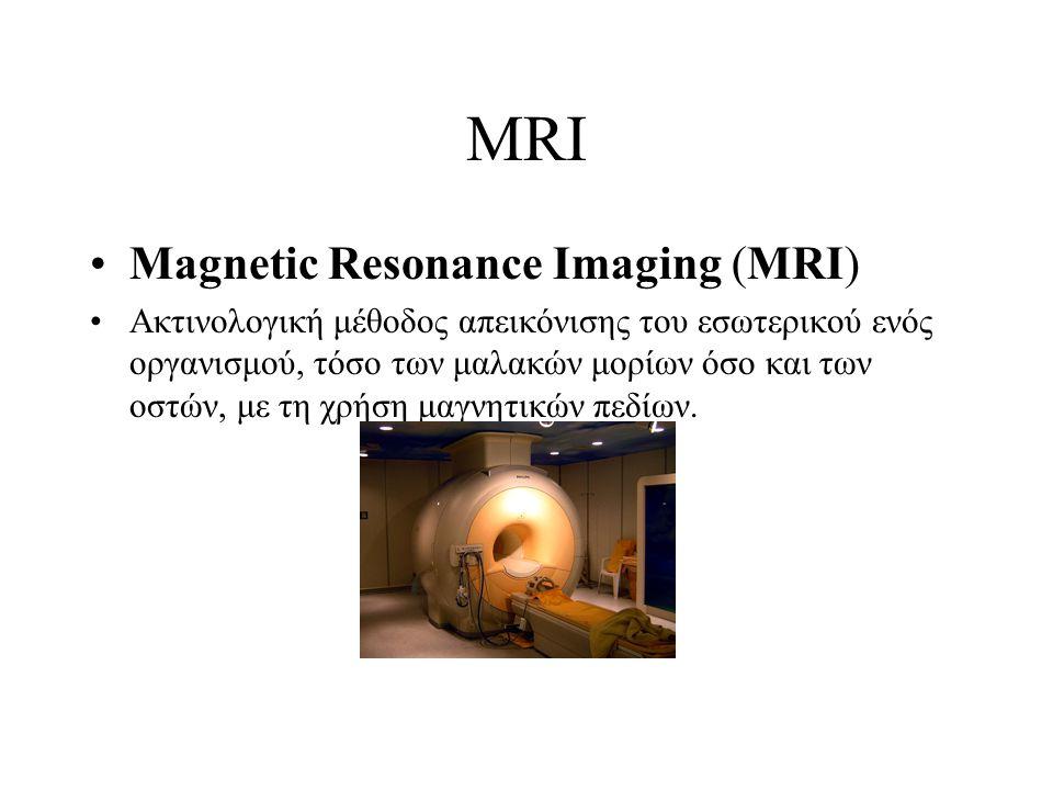 MRI Magnetic Resonance Imaging (MRI) Ακτινολογική μέθοδος απεικόνισης του εσωτερικού ενός οργανισμού, τόσο των μαλακών μορίων όσο και των οστών, με τη