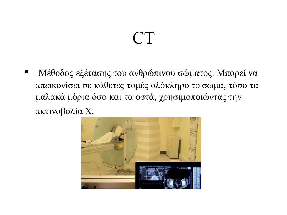 CT Mέθοδος εξέτασης του ανθρώπινου σώματος. Μπορεί να απεικονίσει σε κάθετες τομές ολόκληρο το σώμα, τόσο τα μαλακά μόρια όσο και τα οστά, χρησιμοποιώ