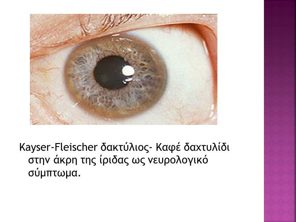 Kayser-Fleischer δακτύλιος- Καφέ δαχτυλίδι στην άκρη της ίριδας ως νευρολογικό σύμπτωμα.