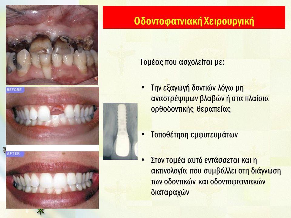 Οδοντοφατνιακή Χειρουργική Τομέας που ασχολείται με: Την εξαγωγή δοντιών λόγω μη αναστρέψιμων βλαβών ή στα πλαίσια ορθοδοντικής θεραπείας Τοποθέτηση ε