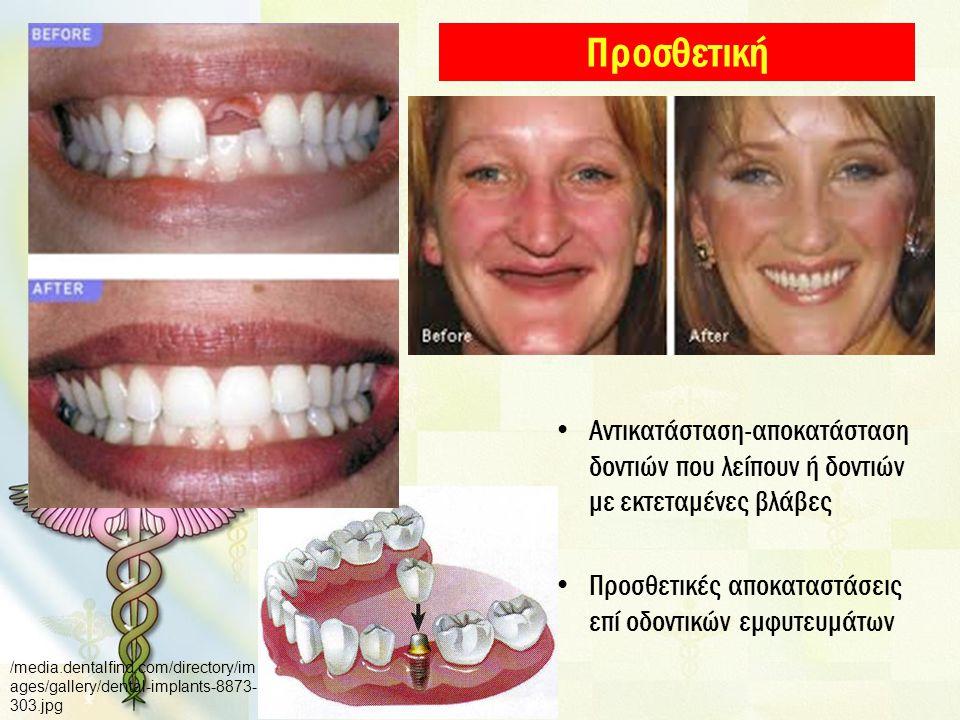 Προσθετική Αντικατάσταση-αποκατάσταση δοντιών που λείπουν ή δοντιών με εκτεταμένες βλάβες Προσθετικές αποκαταστάσεις επί οδοντικών εμφυτευμάτων /media