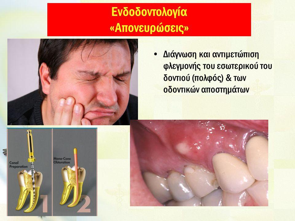 Ενδοδοντολογία «Απονευρώσεις» Διάγνωση και αντιμετώπιση φλεγμονής του εσωτερικού του δοντιού (πολφός) & των οδοντικών αποστημάτων
