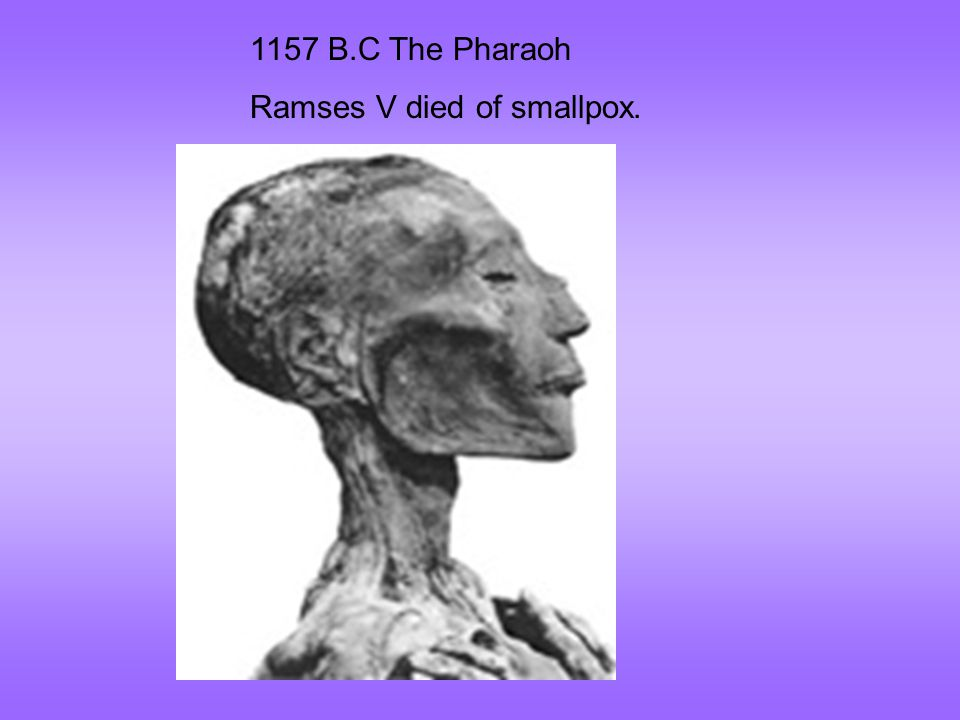 1157 B.C The Pharaoh Ramses V died of smallpox.