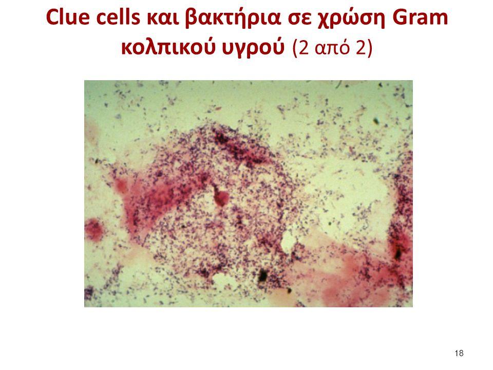 Clue cells και βακτήρια σε χρώση Gram κολπικού υγρού (2 από 2) 18
