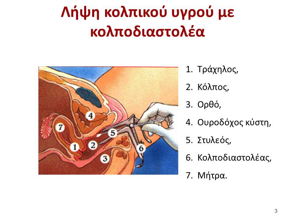 Λήψη κολπικού υγρού με κολποδιαστολέα 1.Tράχηλος, 2.Κόλπος, 3.Ορθό, 4.Ουροδόχος κύστη, 5.Στυλεός, 6.Κολποδιαστολέας, 7.Μήτρα. 3