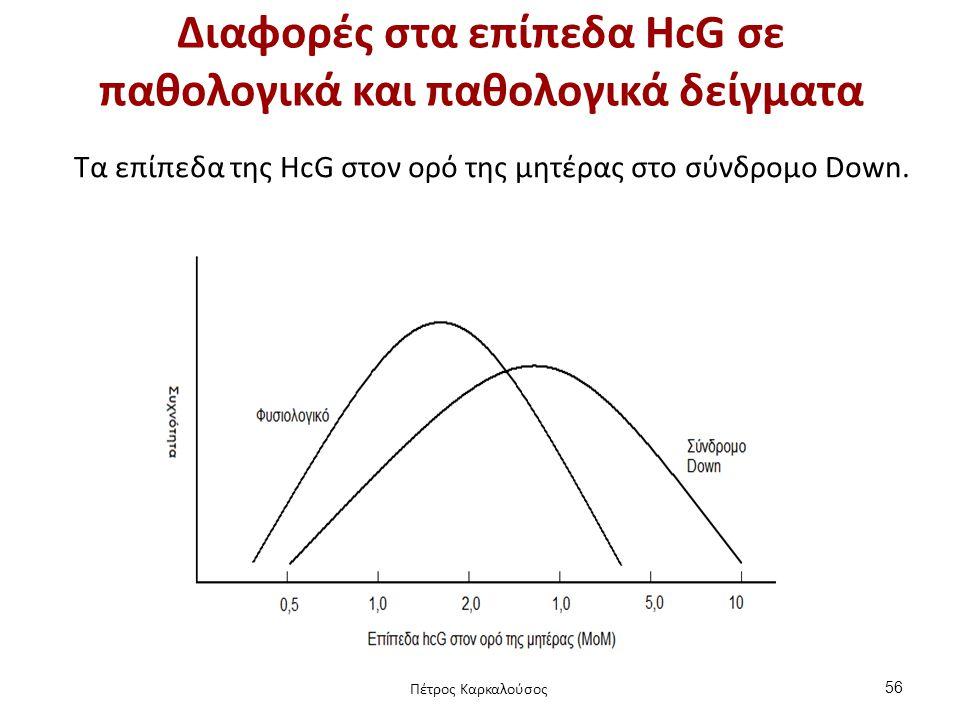 Διαφορές στα επίπεδα HcG σε παθολογικά και παθολογικά δείγματα Tα επίπεδα της HcG στον ορό της μητέρας στο σύνδρομο Down. 56 Πέτρος Καρκαλούσος
