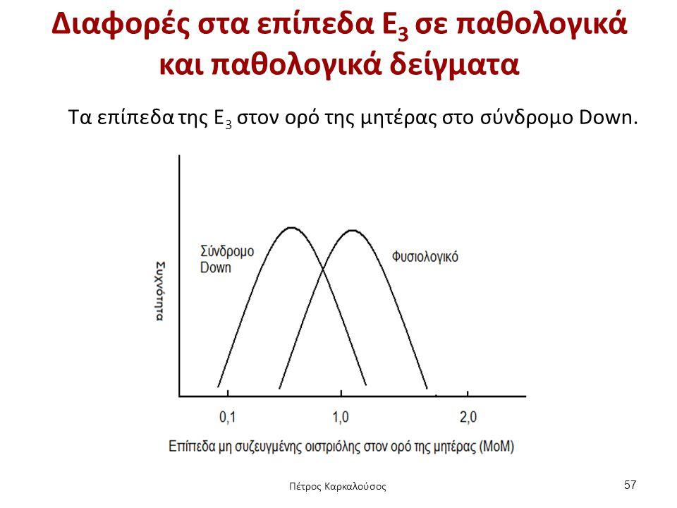 Διαφορές στα επίπεδα Ε 3 σε παθολογικά και παθολογικά δείγματα Tα επίπεδα της Ε 3 στον ορό της μητέρας στο σύνδρομο Down. 57 Πέτρος Καρκαλούσος