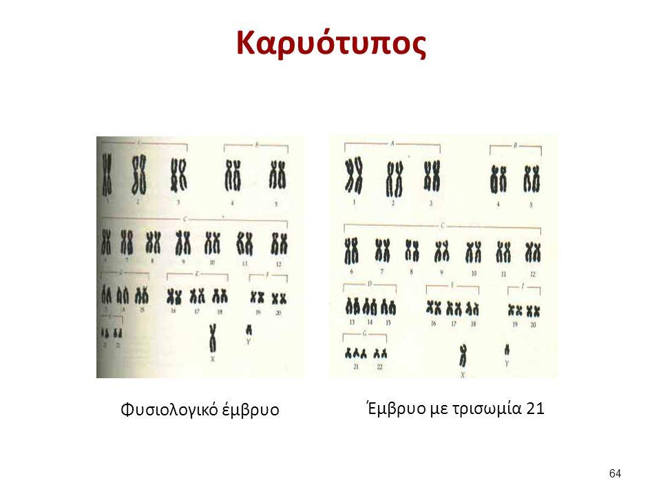 Kαρυότυπος Φυσιολογικό έμβρυο Έμβρυο με τρισωμία 21 64