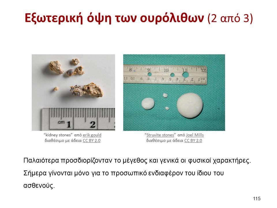 Εξωτερική όψη των ουρόλιθων (2 από 3) 115 kidney stones από erik gould διαθέσιμο με άδεια CC BY 2.0erik gouldCC BY 2.0 Παλαιότερα προσδιορίζονταν το μέγεθος και γενικά οι φυσικοί χαρακτήρες.