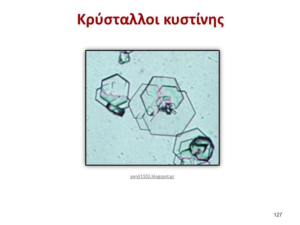 Κρύσταλλοι κυστίνης 127 panji1102.blogspot.gr