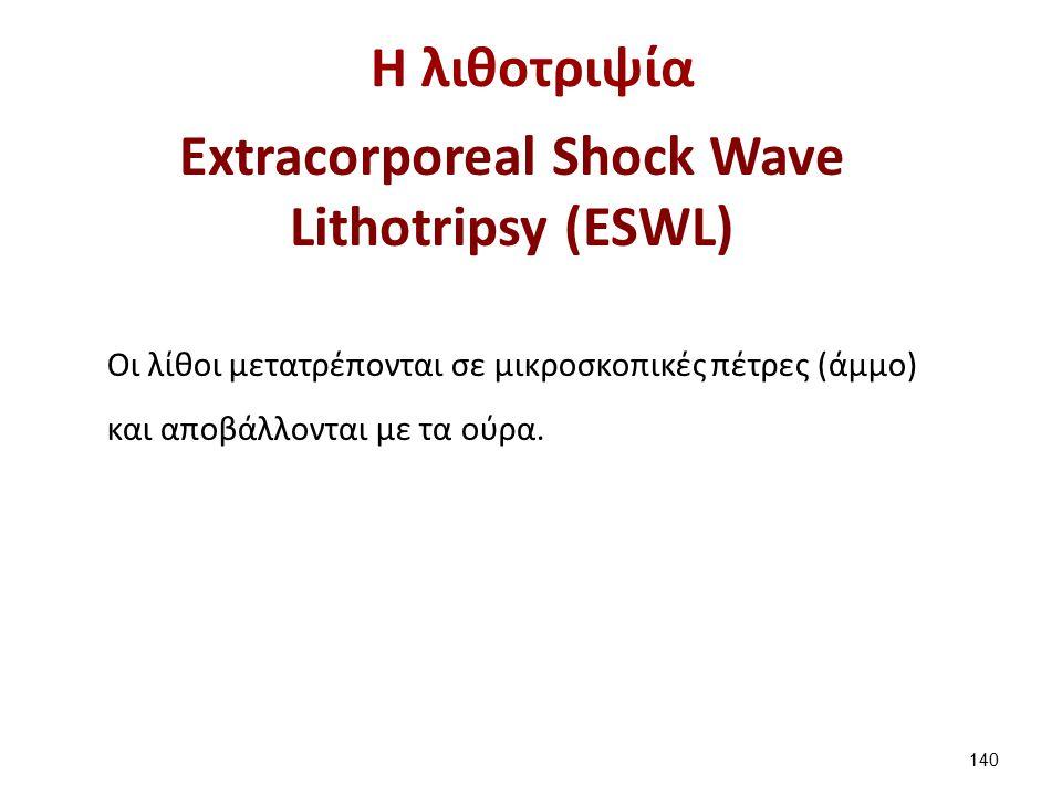 H λιθοτριψία Extracorporeal Shock Wave Lithotripsy (ESWL) Οι λίθοι μετατρέπονται σε μικροσκοπικές πέτρες (άμμο) και αποβάλλονται με τα ούρα.