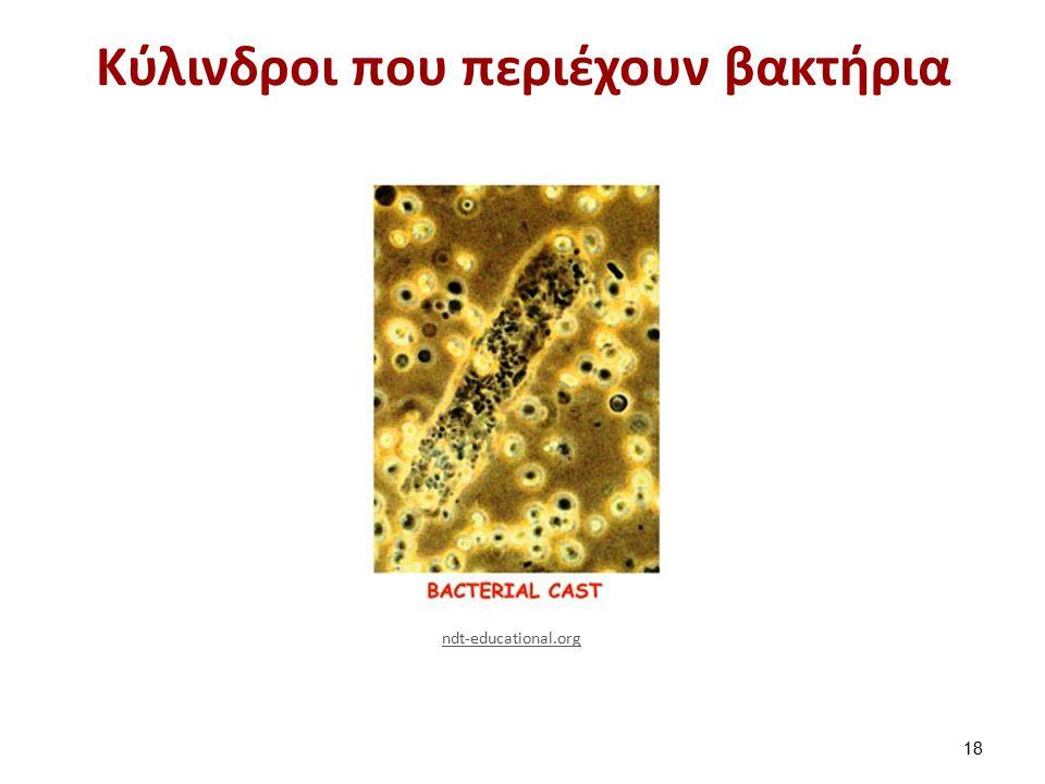 Κύλινδροι που περιέχουν βακτήρια 18 ndt-educational.org