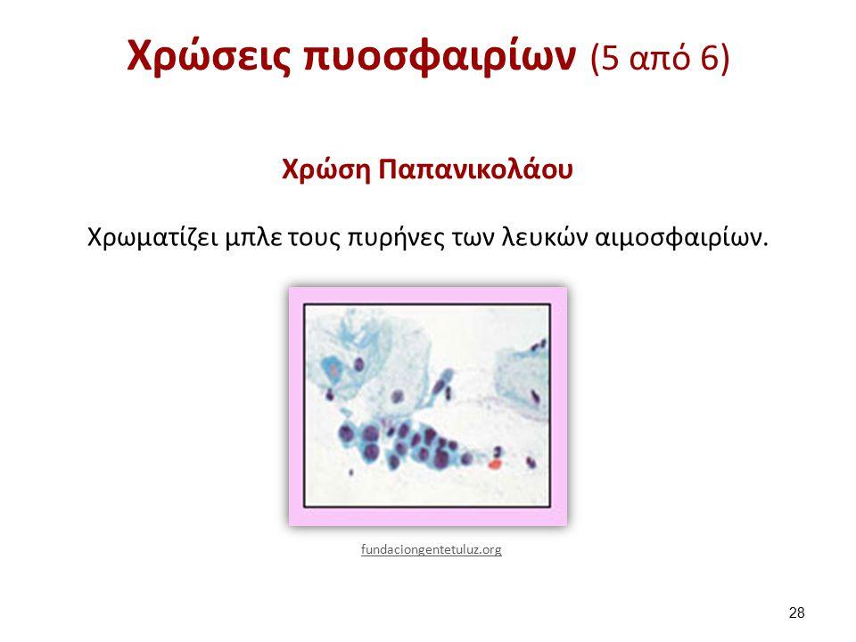 Χρώσεις πυοσφαιρίων (5 από 6) Χρώση Παπανικολάου Χρωματίζει μπλε τους πυρήνες των λευκών αιμοσφαιρίων.