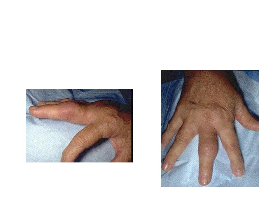 Εργαστηριακές εξετάσεις (1) Εξέταση αρθρικού υγρού: Λευκά>50.000/mm 3 Ουδετερόφιλα>80% Χρώση Gram θετική: 75% σε σταφυλόκοκκο 50% σε Gram(-) μικρόβια Καλλιέργεια συχνά θετική Γενική αίματος: Λευκοκυττάρωση με πολυμορφοπυρήνωση 50%:Λευκά>10.000/mm 3 Συνήθως αύξηση ΤΚΕ, CRP Καλλιέργεια αίματος: Θετική στο 33-50%, ιδιαίτερα σε ρίγος