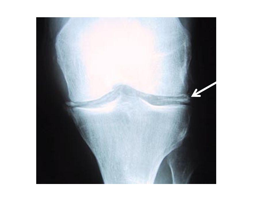 Οστεοαρθρίτιδα Συχνότερο νόσημα των αρθρώσεων Οικονομικές επιπτώσεις (χαμένες εργατοώρες, κόστος θεραπείας, επιπλοκές αναλγητικών) ΑΡΘΡΙΚΟΣ ΧΟΝΔΡΟΣΌργανο στόχος: ΑΡΘΡΙΚΟΣ ΧΟΝΔΡΟΣ Ηλικία Φύλο Βάρος σώματος Επάγγελμα-δραστηριότητες –Τραυμα
