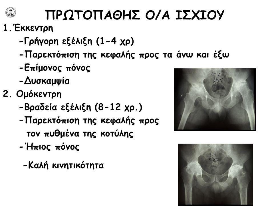 ΠΡΩΤΟΠΑΘΗΣ Ο/Α ΙΣΧΙΟΥ 1.Έκκεντρη -Γρήγορη εξέλιξη (1-4 χρ) -Παρεκτόπιση της κεφαλής προς τα άνω και έξω -Επίμονος πόνος -Δυσκαμψία 2. Ομόκεντρη -Βραδε