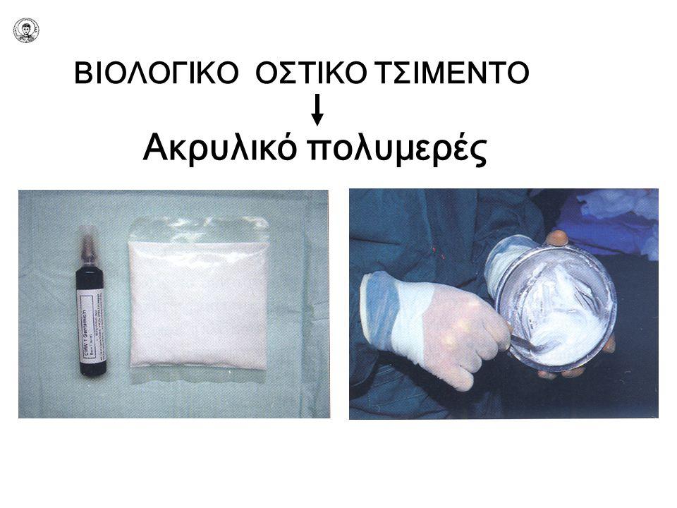 ΒΙΟΛΟΓΙΚΟ ΟΣΤΙΚΟ ΤΣΙΜΕΝΤΟ Ακρυλικό πολυμερές
